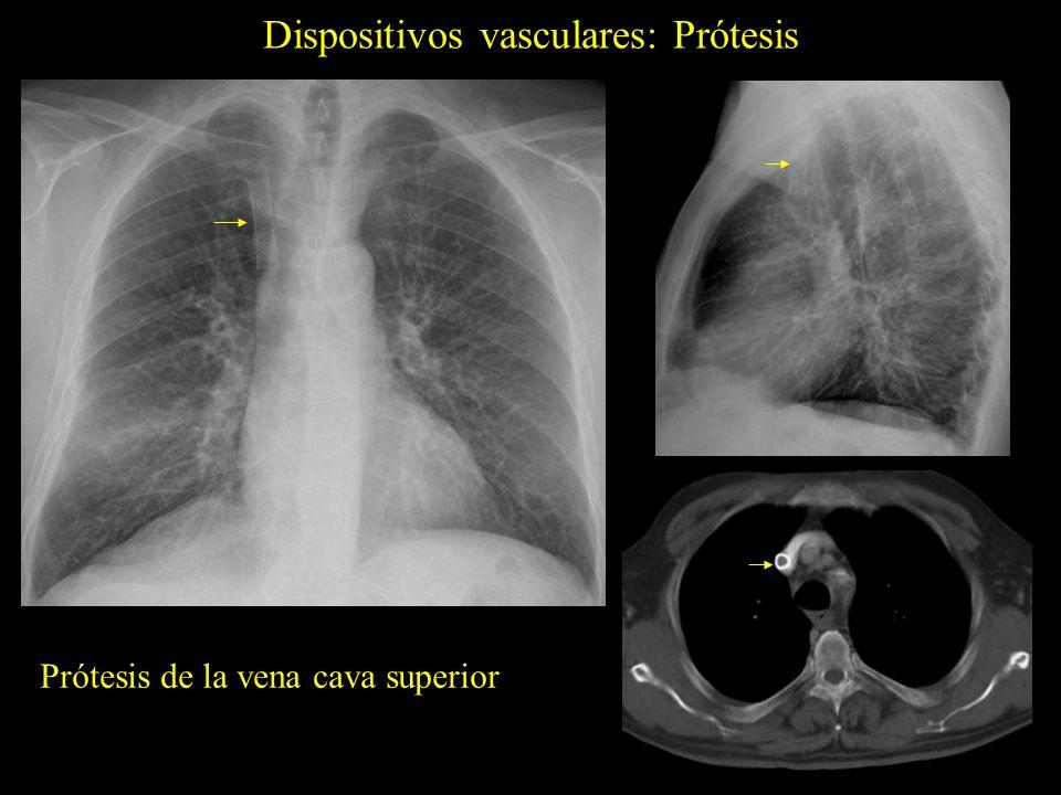 Dispositivos vasculares: Prótesis