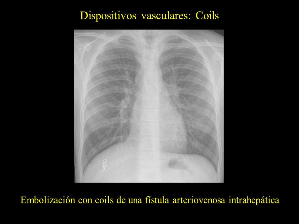Dispositivos vasculares: Coils