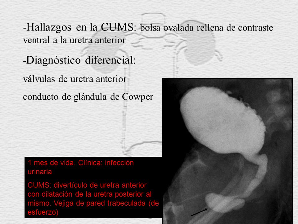 -Hallazgos en la CUMS: bolsa ovalada rellena de contraste ventral a la uretra anterior
