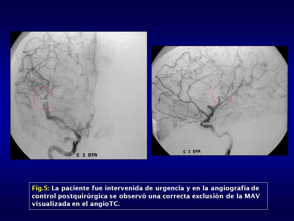 Fig.5: La paciente fue intervenida de urgencia y en la angiografía de control postquirúrgica se observó una correcta exclusión de la MAV visualizada en el angioTC.