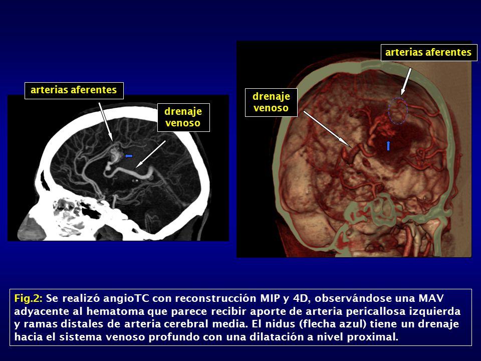 arterias aferentes arterias aferentes. drenaje venoso. drenaje venoso.