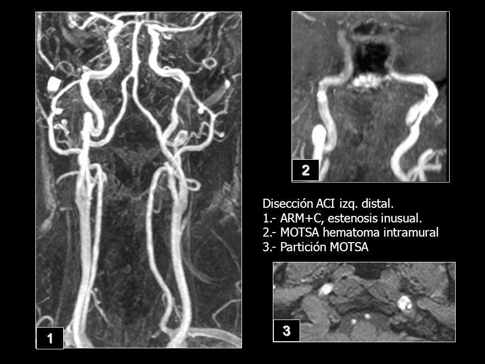 2 3 1 Disección ACI izq. distal. 1.- ARM+C, estenosis inusual.
