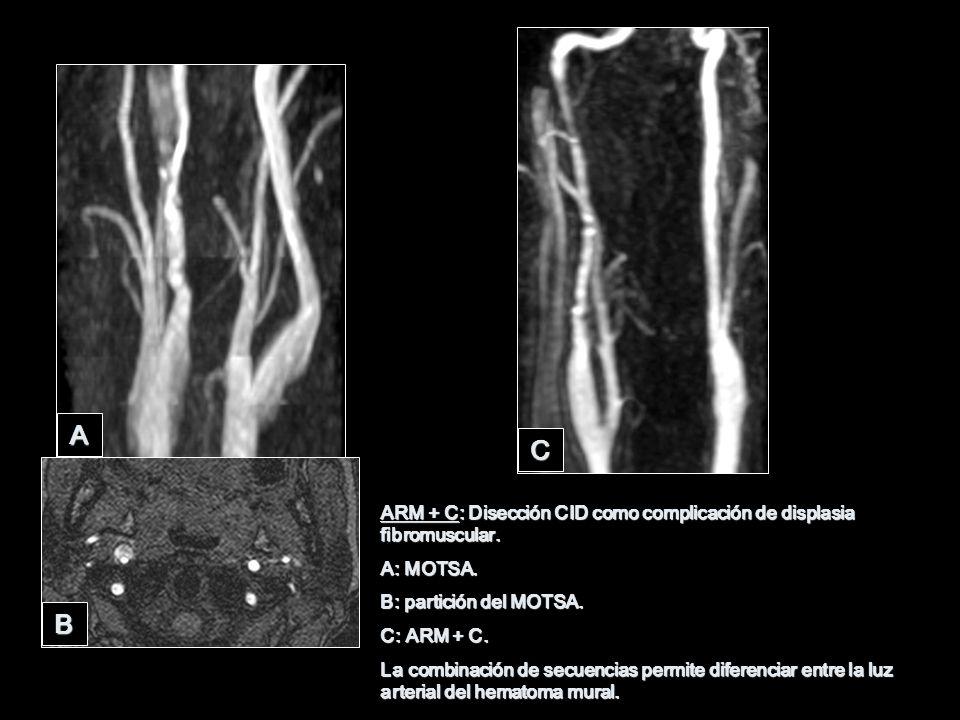 A C. ARM + C: Disección CID como complicación de displasia fibromuscular. A: MOTSA. B: partición del MOTSA.