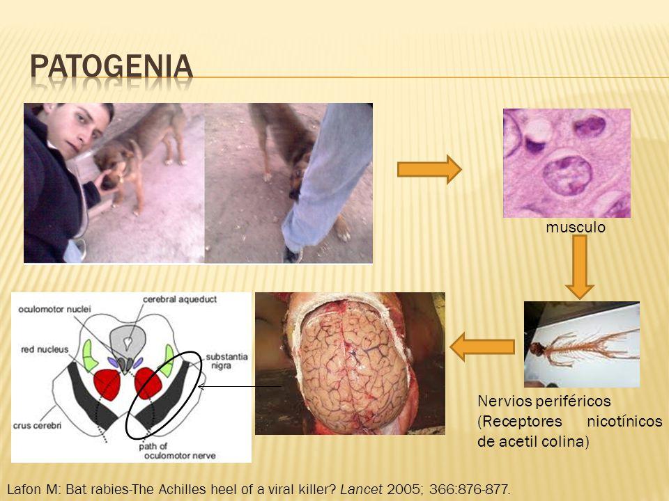 patogenia musculo Nervios periféricos