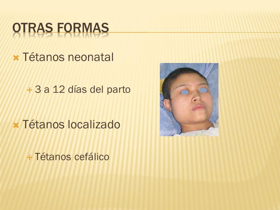 Otras formas Tétanos neonatal Tétanos localizado 3 a 12 días del parto
