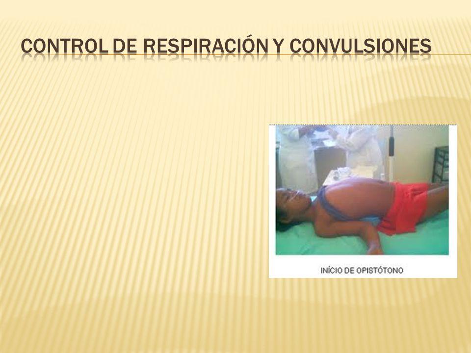Control de respiración y convulsiones