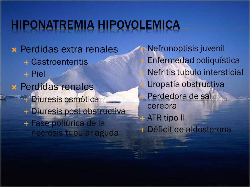 Hiponatremia hipovolemica