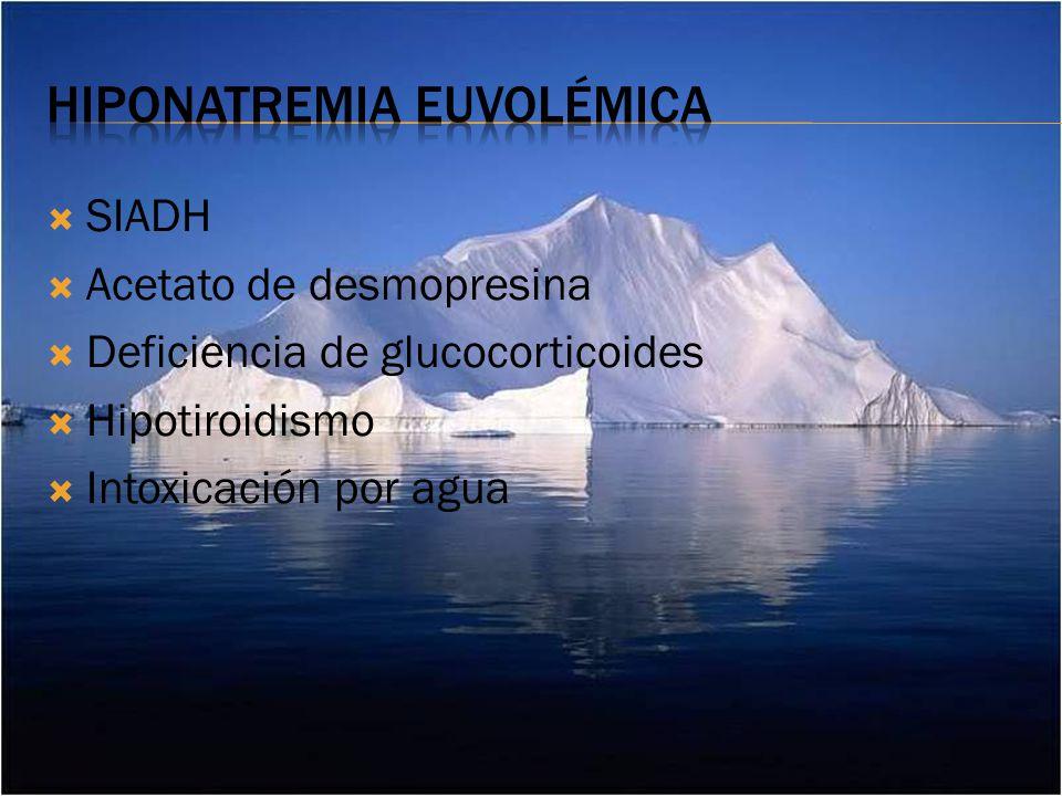 Hiponatremia euvolémica