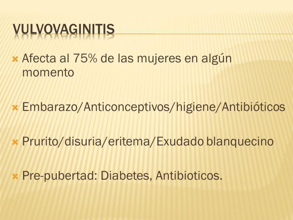 vulvovaginitis Afecta al 75% de las mujeres en algún momento