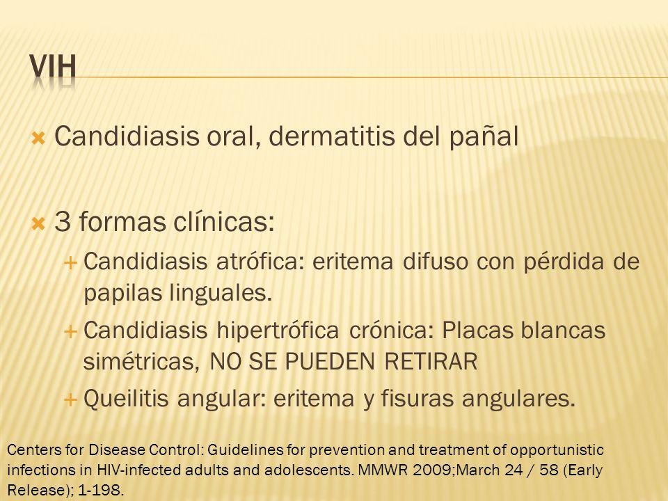 VIH Candidiasis oral, dermatitis del pañal 3 formas clínicas: