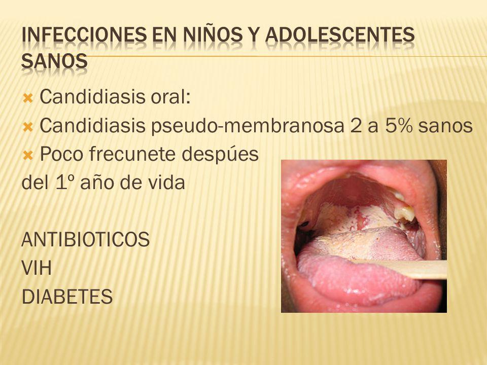 Infecciones en niños y adolescentes sanos