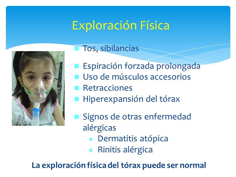 La exploración física del tórax puede ser normal