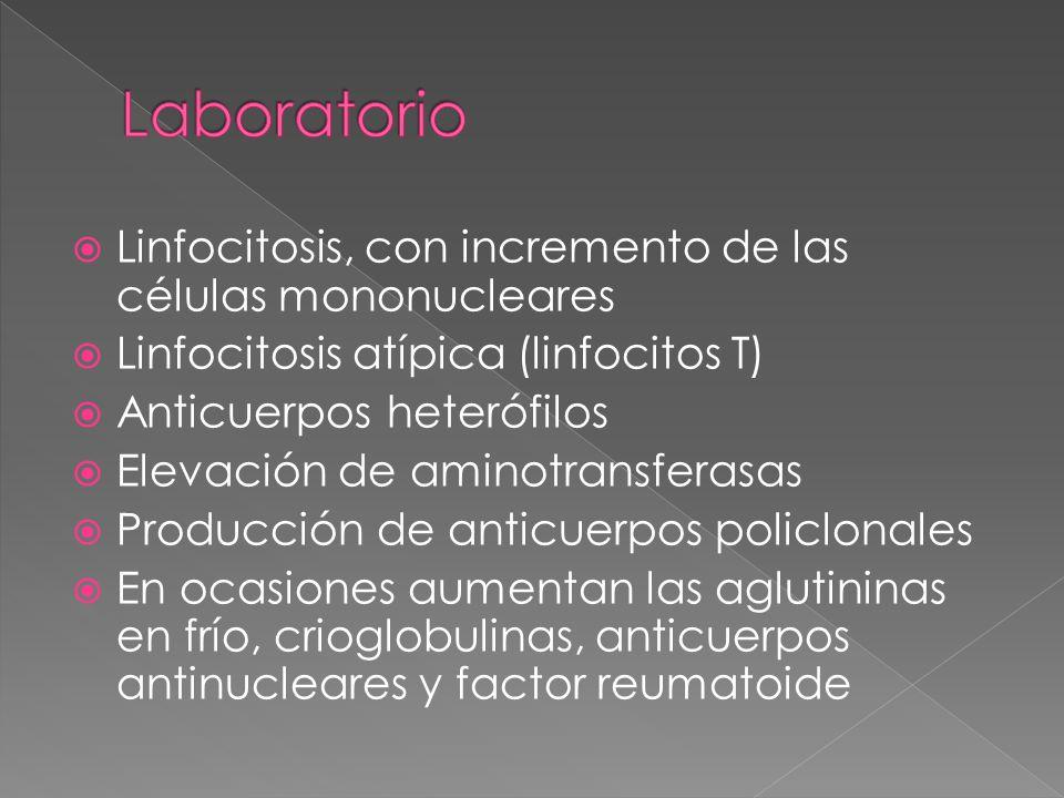 Laboratorio Linfocitosis, con incremento de las células mononucleares