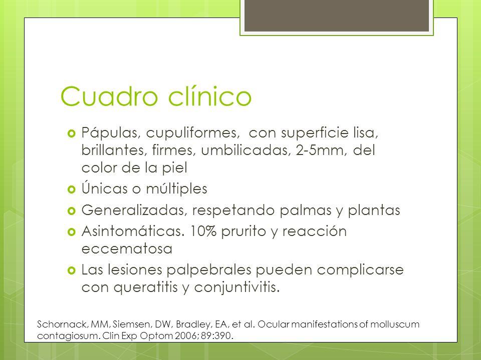 Cuadro clínico Pápulas, cupuliformes, con superficie lisa, brillantes, firmes, umbilicadas, 2-5mm, del color de la piel.