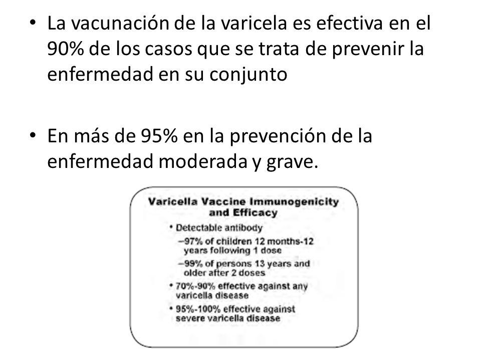 La vacunación de la varicela es efectiva en el 90% de los casos que se trata de prevenir la enfermedad en su conjunto