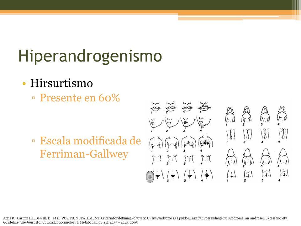 Hiperandrogenismo Hirsurtismo Presente en 60%