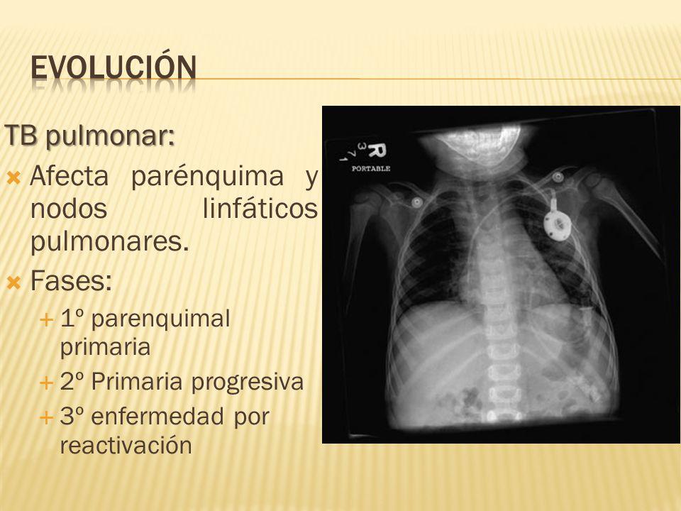 evolución TB pulmonar: