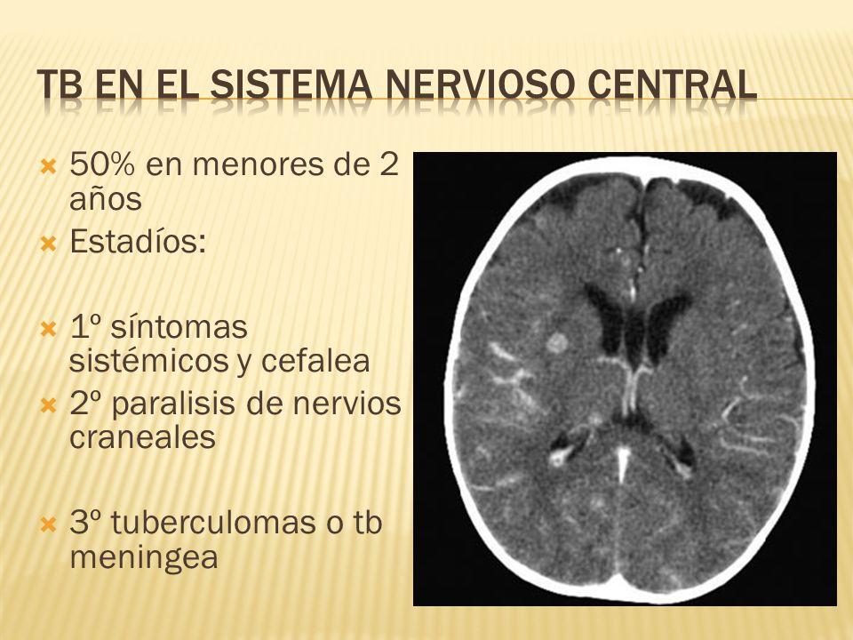 Tb en el Sistema Nervioso Central