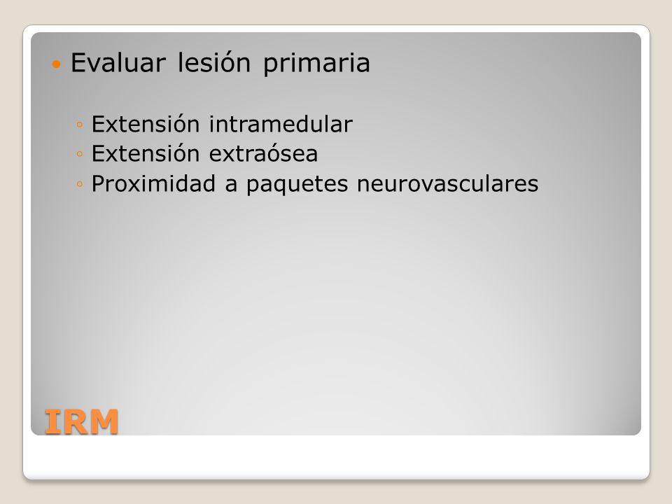 IRM Evaluar lesión primaria Extensión intramedular Extensión extraósea
