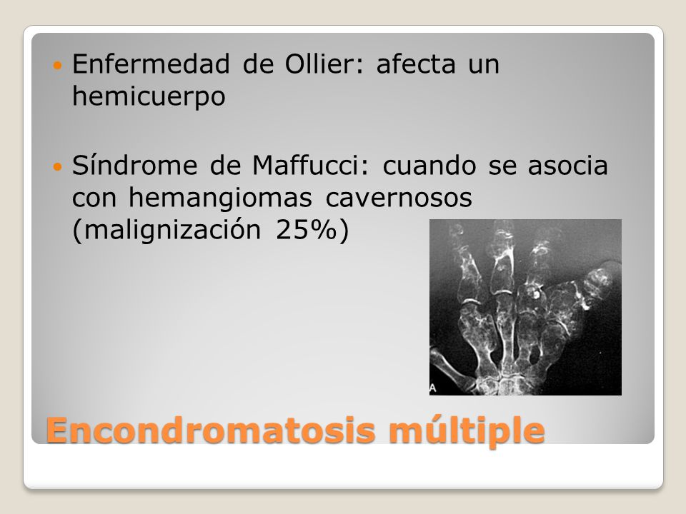 Encondromatosis múltiple