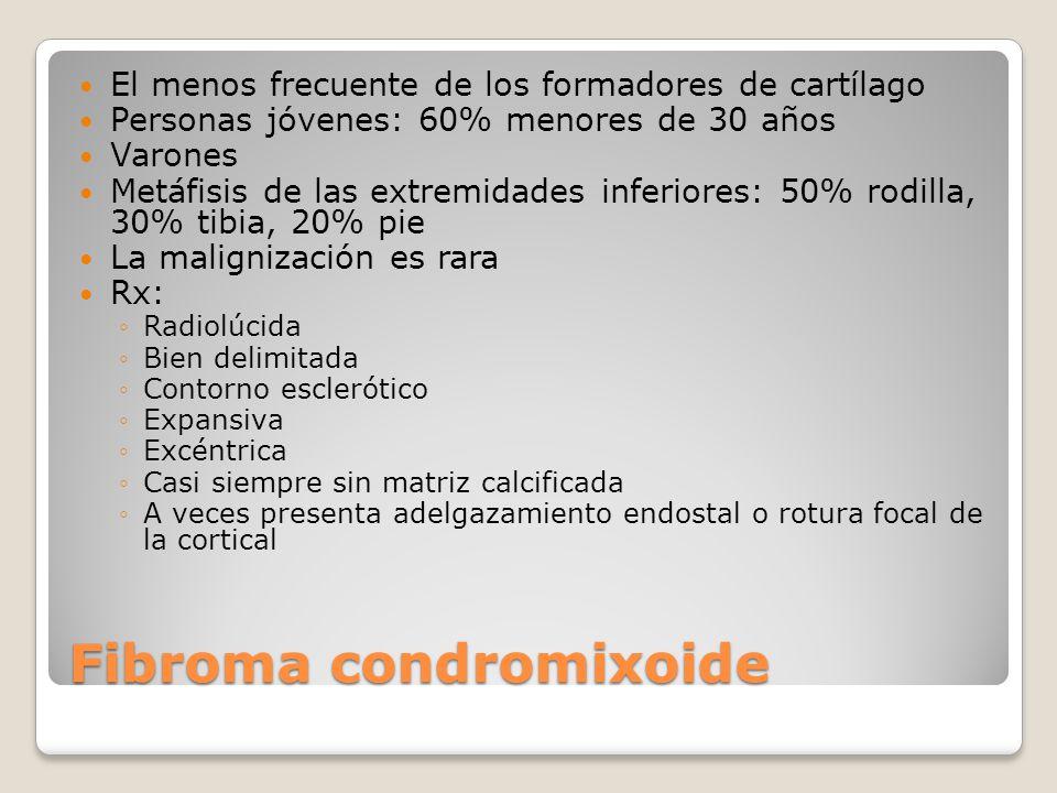 Fibroma condromixoide