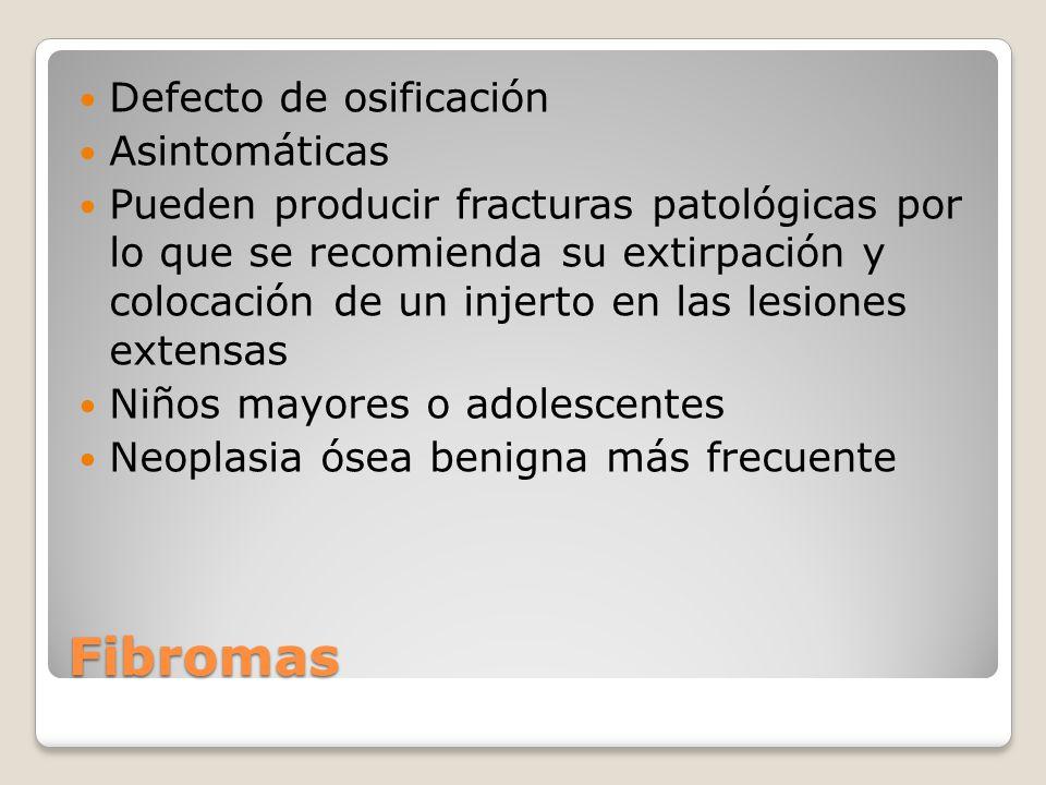 Fibromas Defecto de osificación Asintomáticas