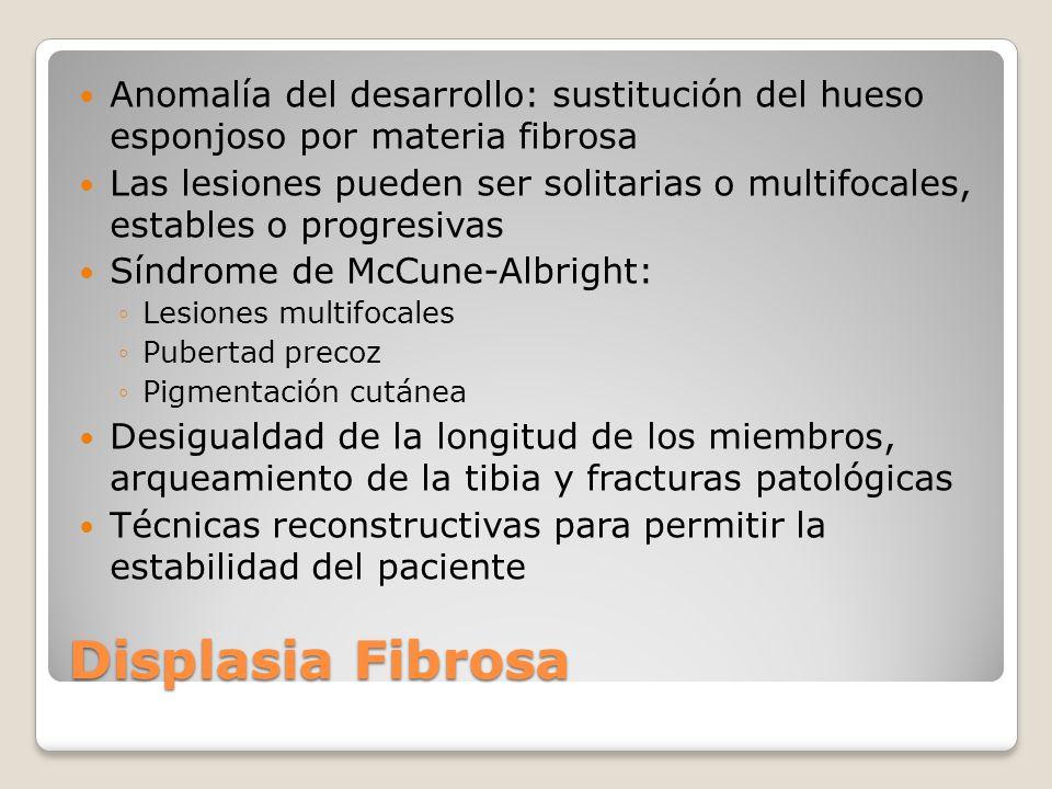 Anomalía del desarrollo: sustitución del hueso esponjoso por materia fibrosa