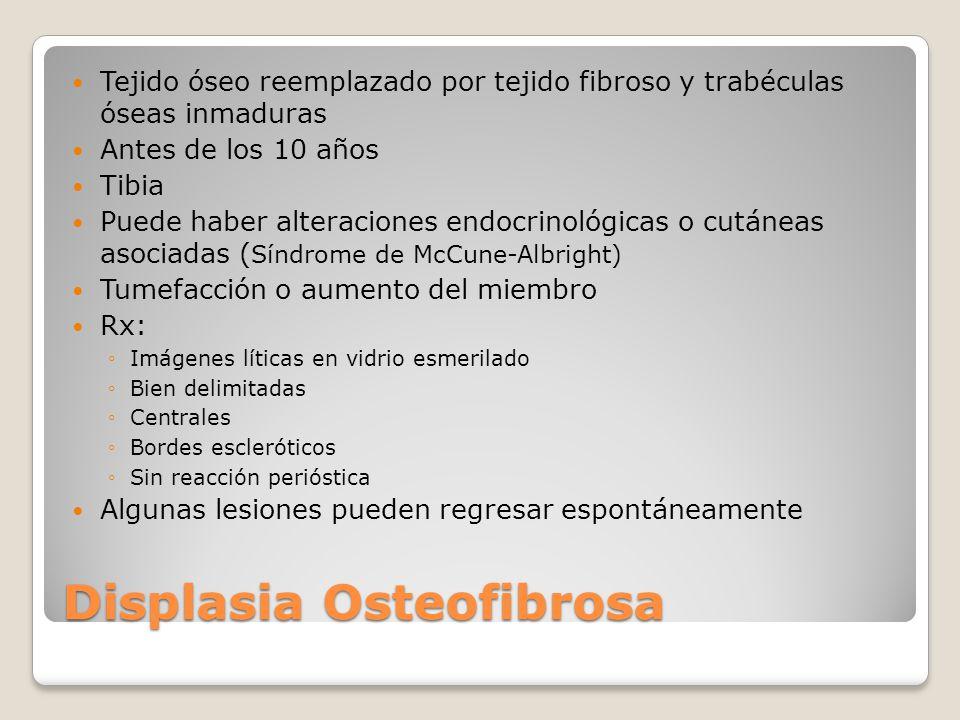 Displasia Osteofibrosa