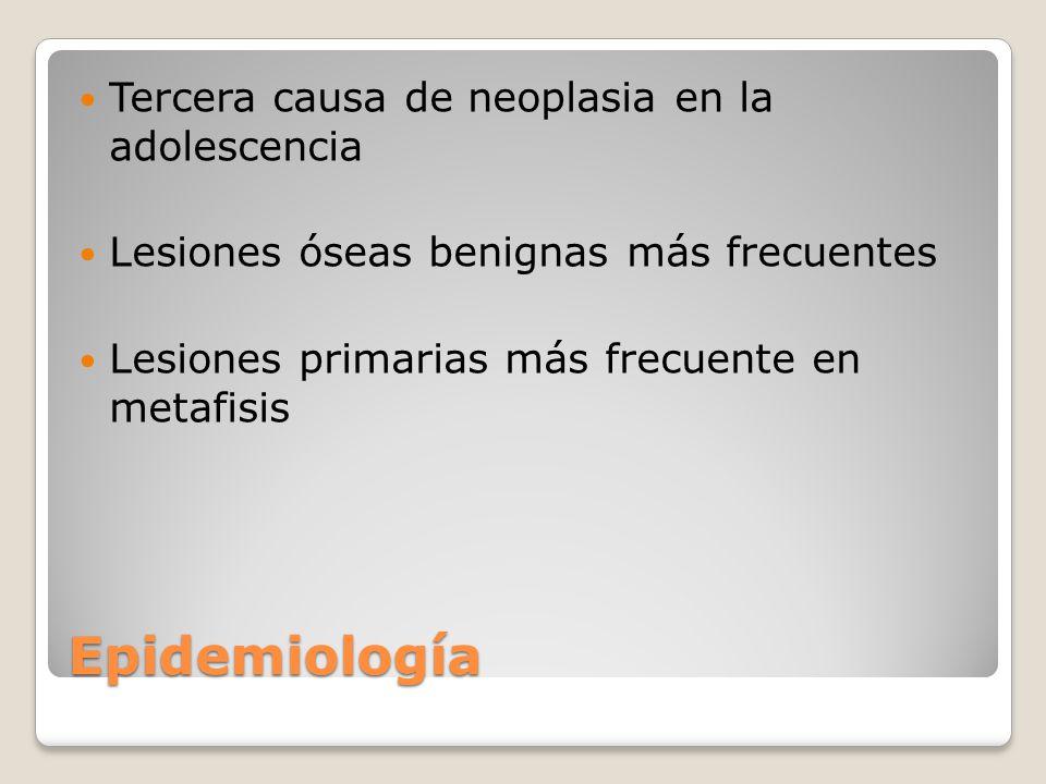 Epidemiología Tercera causa de neoplasia en la adolescencia