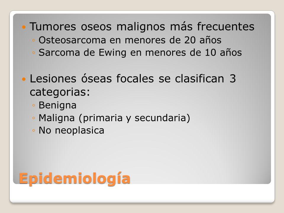 Epidemiología Tumores oseos malignos más frecuentes