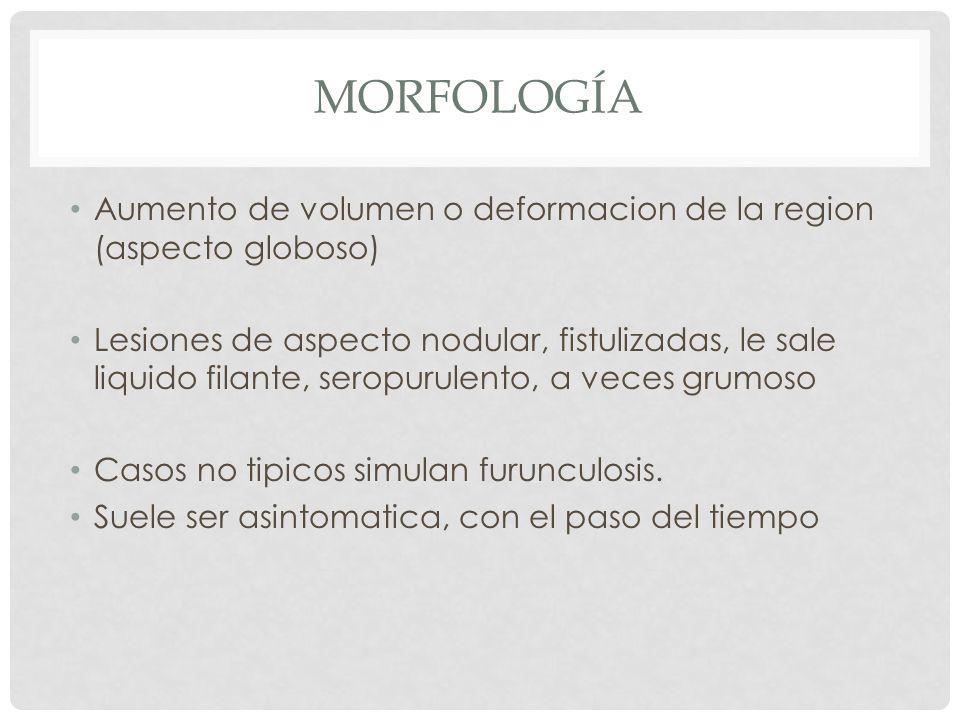 morfología Aumento de volumen o deformacion de la region (aspecto globoso)