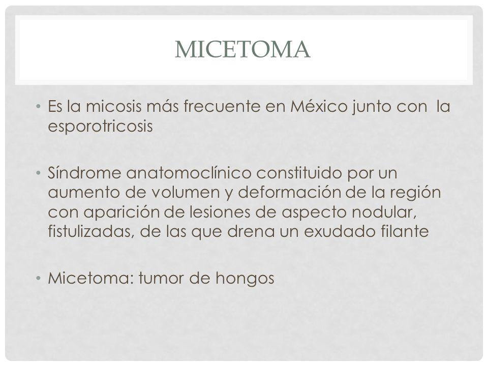 micetoma Es la micosis más frecuente en México junto con la esporotricosis.