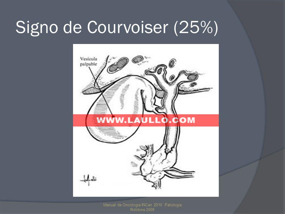 Signo de Courvoiser (25%)