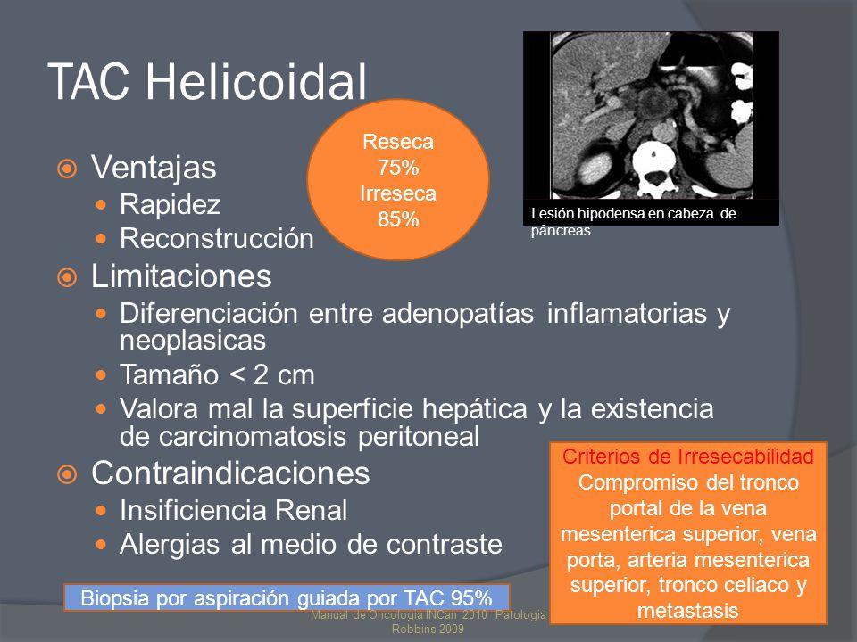 TAC Helicoidal Reseca 75% Irreseca 85% Ventajas. Rapidez. Reconstrucción. Limitaciones.