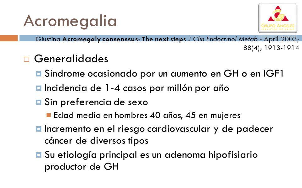 Acromegalia Generalidades