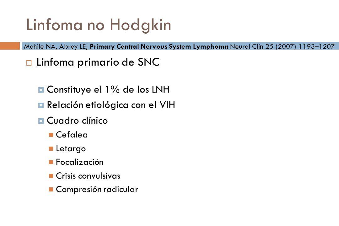 Linfoma no Hodgkin Linfoma primario de SNC Constituye el 1% de los LNH