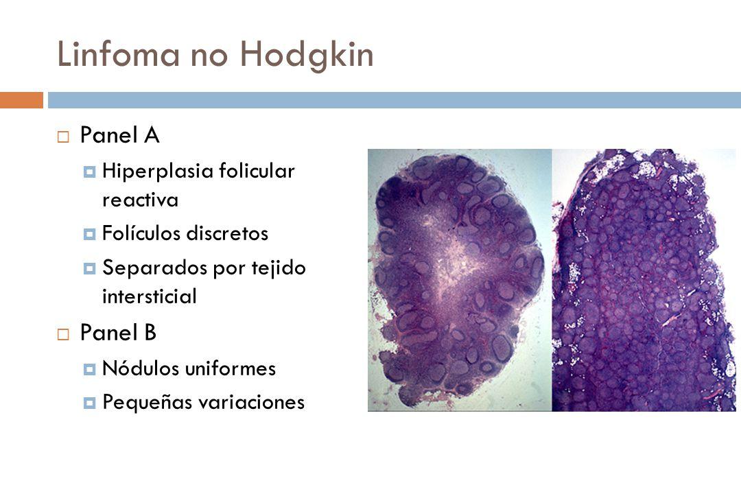Linfoma no Hodgkin Panel A Panel B Hiperplasia folicular reactiva