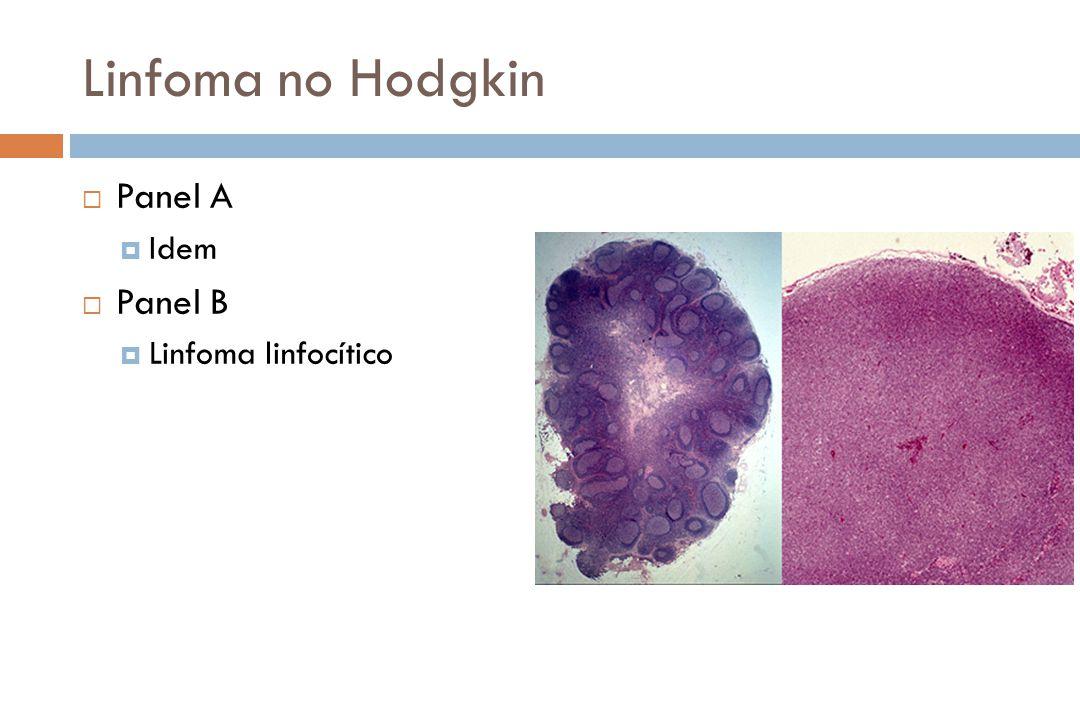 Linfoma no Hodgkin Panel A Idem Panel B Linfoma linfocítico