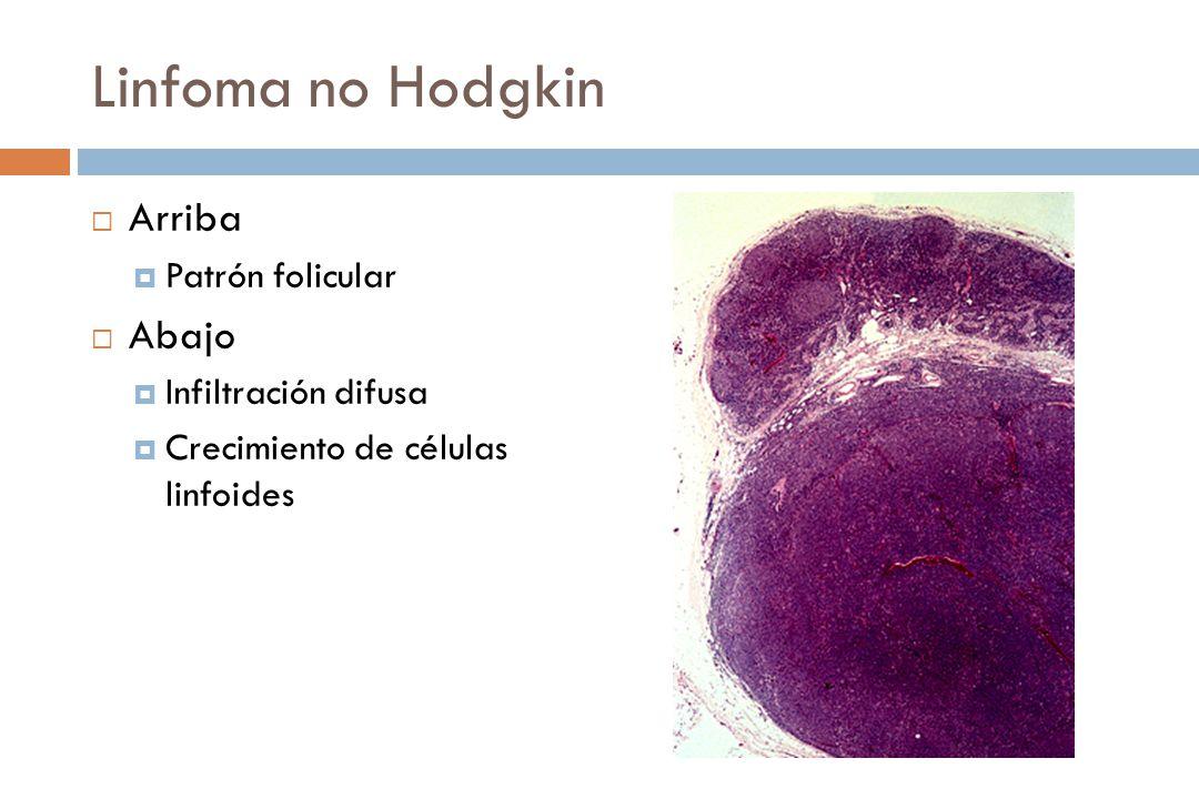 Linfoma no Hodgkin Arriba Abajo Patrón folicular Infiltración difusa