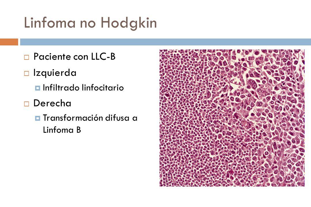 Linfoma no Hodgkin Paciente con LLC-B Izquierda Derecha