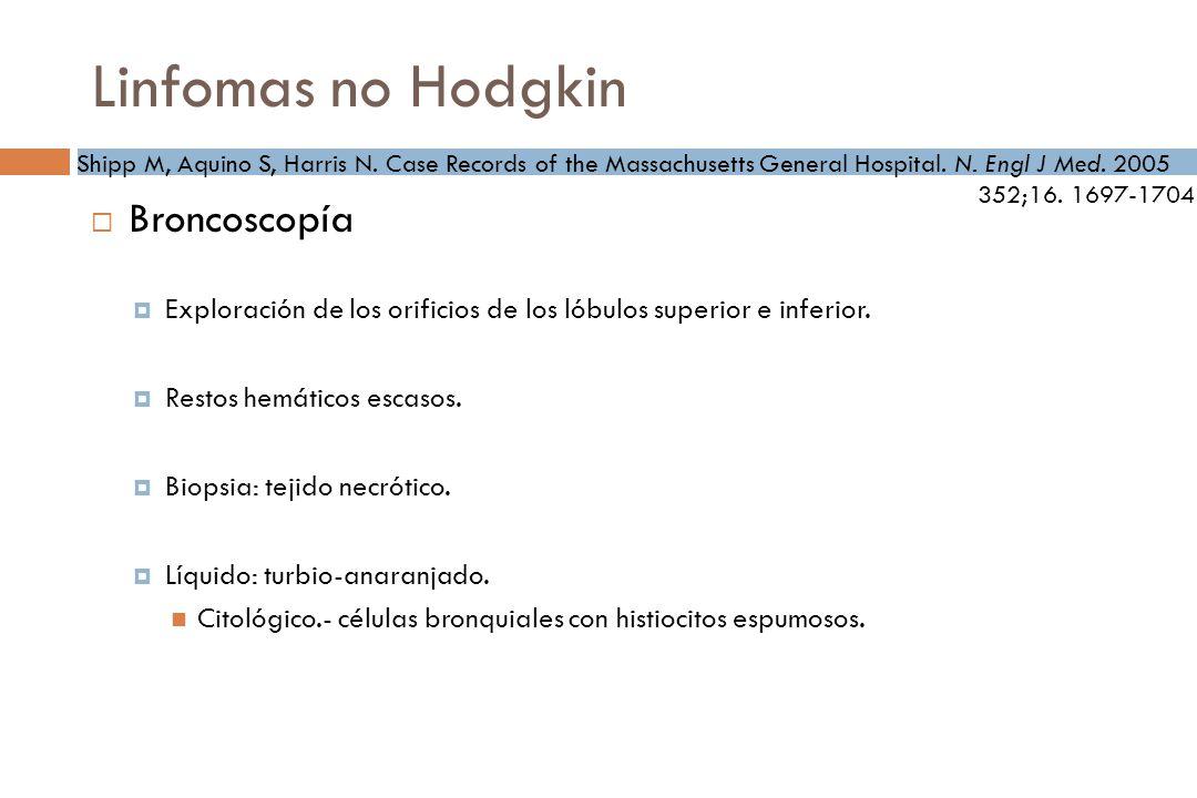 Linfomas no Hodgkin Broncoscopía