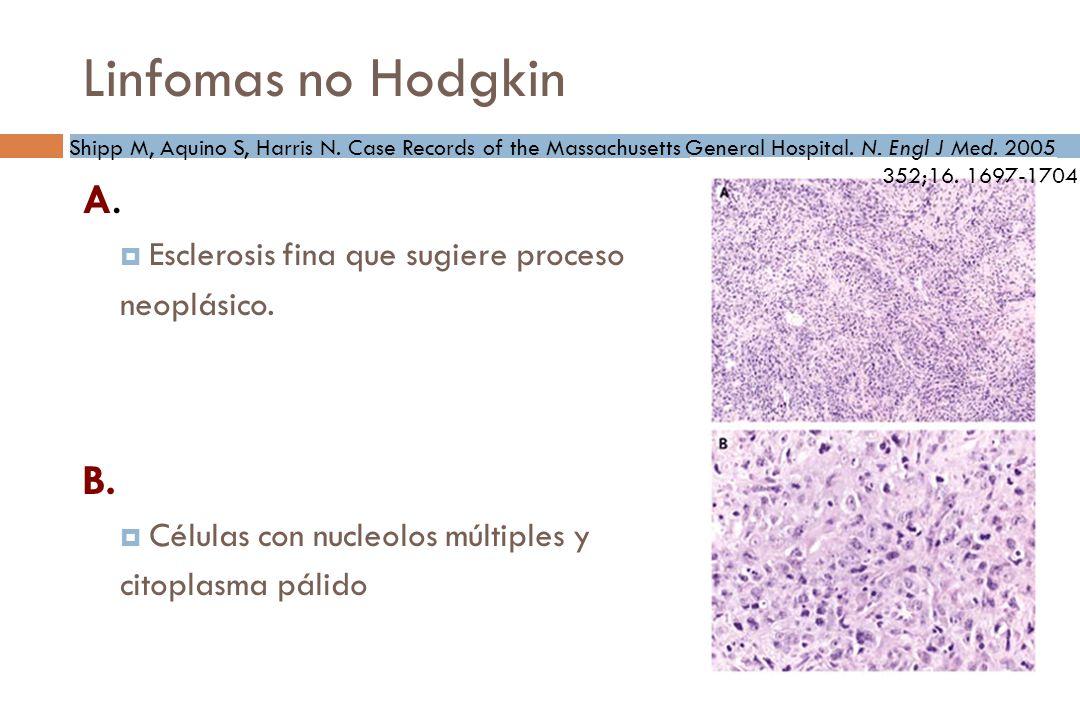 Linfomas no Hodgkin A. B. Esclerosis fina que sugiere proceso