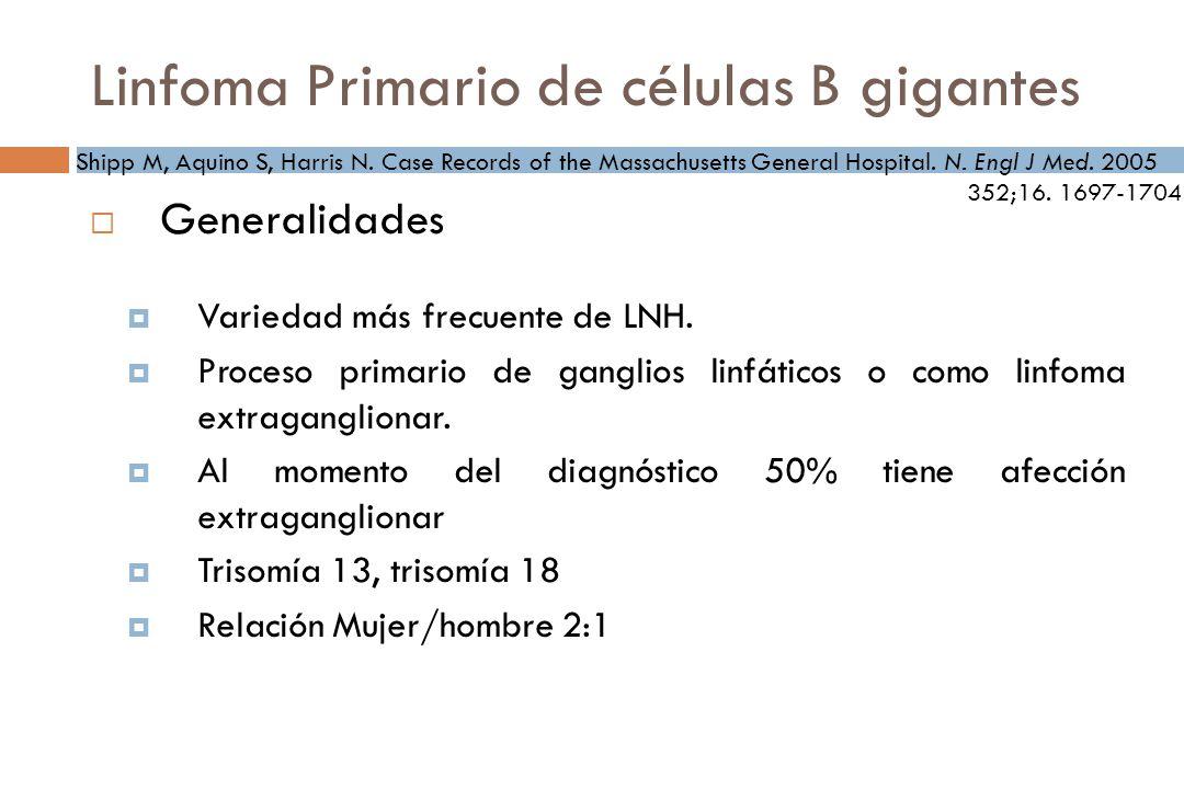 Linfoma Primario de células B gigantes