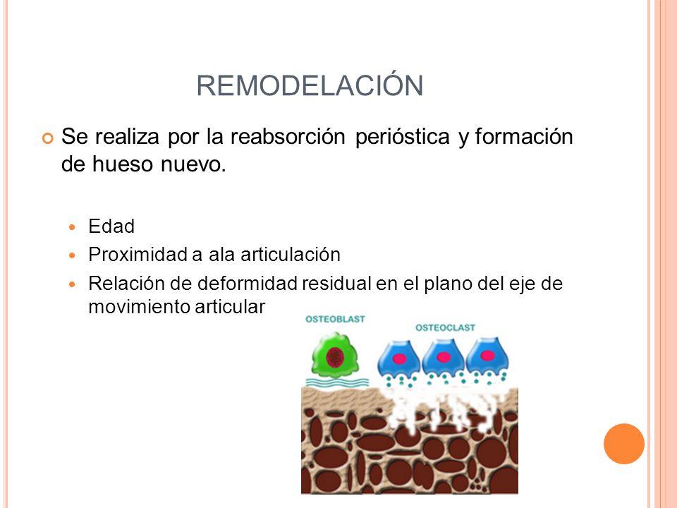 REMODELACIÓN Se realiza por la reabsorción perióstica y formación de hueso nuevo. Edad. Proximidad a ala articulación.