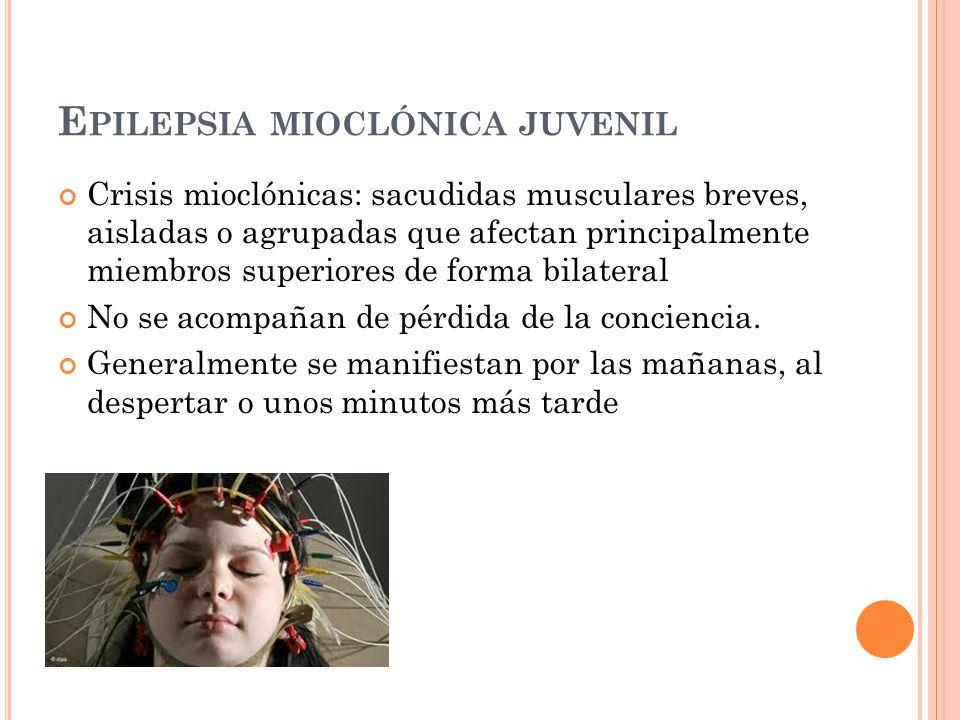 Epilepsia mioclónica juvenil