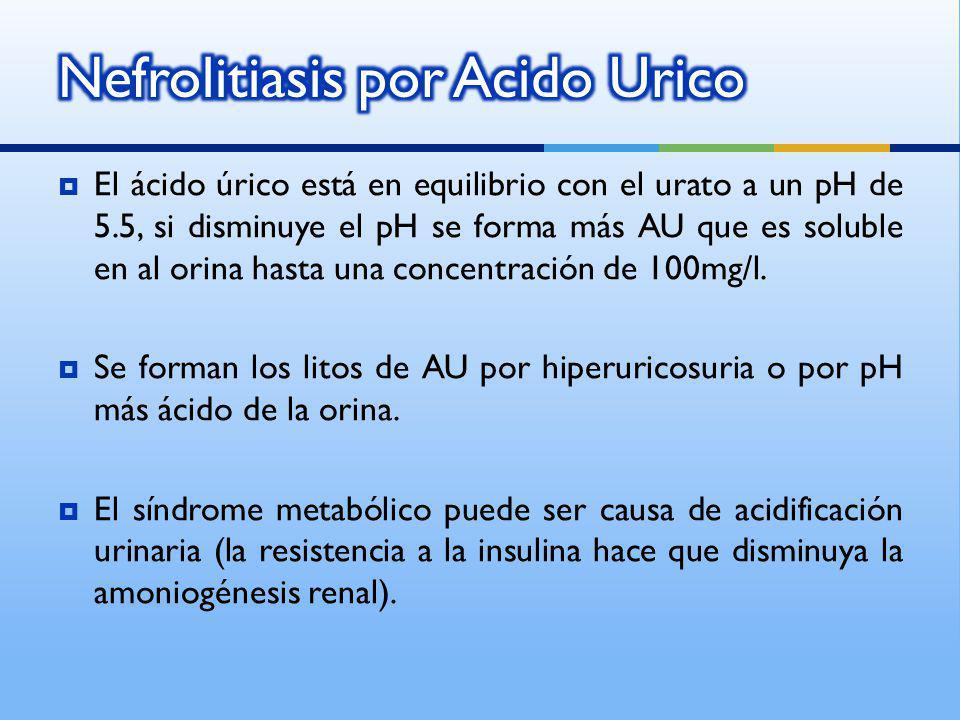 Nefrolitiasis por Acido Urico