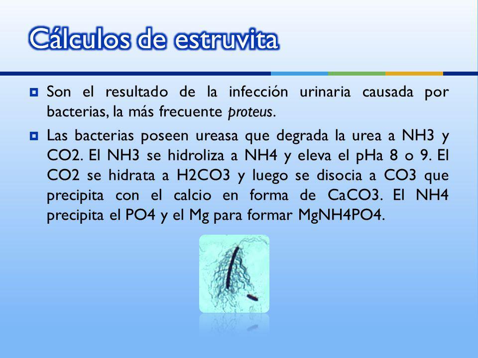 Cálculos de estruvita Son el resultado de la infección urinaria causada por bacterias, la más frecuente proteus.