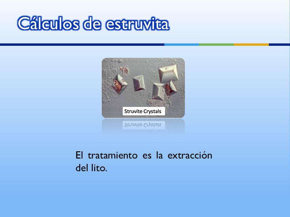 Cálculos de estruvita El tratamiento es la extracción del lito.