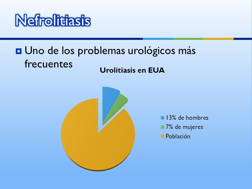 Nefrolitiasis Uno de los problemas urológicos más frecuentes