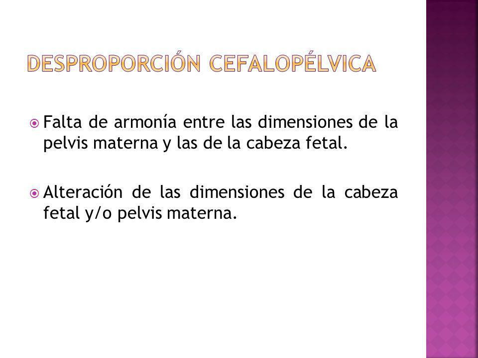 Desproporción cefalopélvica